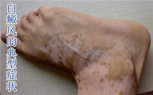 什么样的白斑属于肢端型的